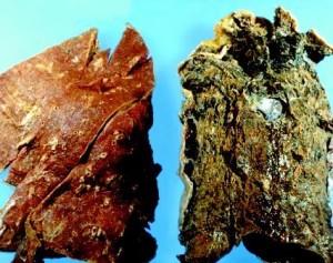 Bild på lunga före och efter rökning.<br /><br />Bild från Clipart.