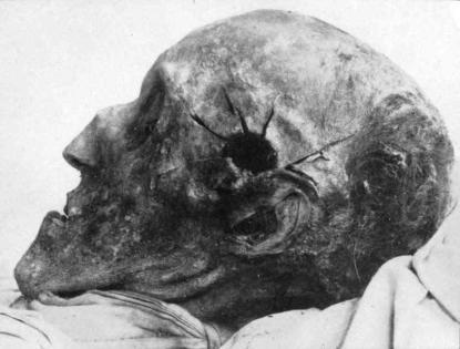 Karl XII:s skottskada fotograferad vid gravöppningen 1917